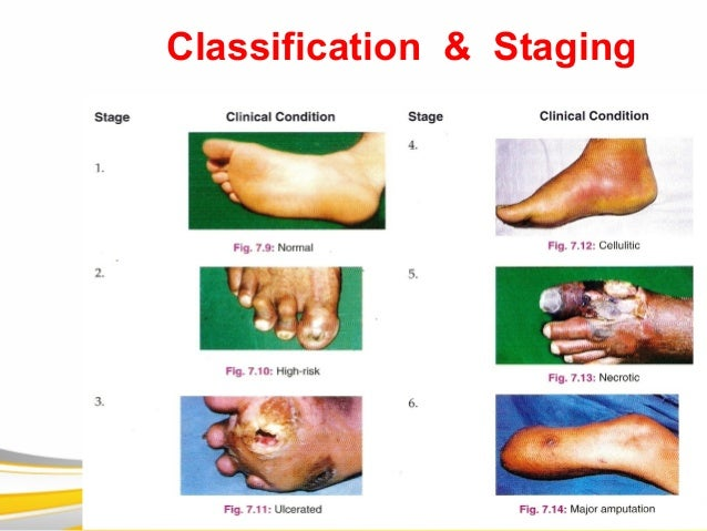 Classification & Staging