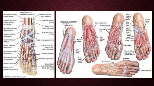 Diabetic foot Slide 3