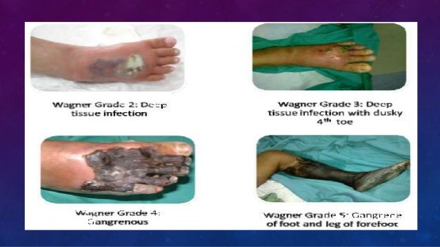 Diabetic foot | the bmj.