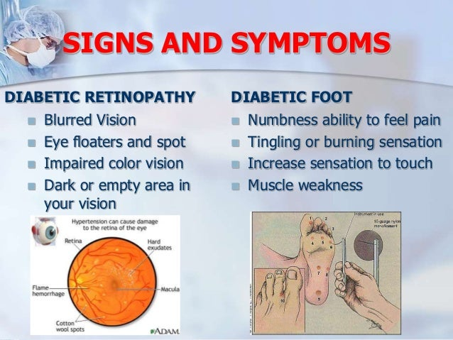 Diabetic foot ulcer presentation.