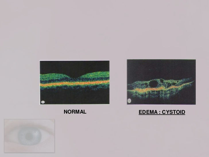 [Early treatment diabetic retinopathy study (ETDRS) visual ...