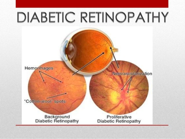 Progressive dysfunction of the  retinal blood vessels caused by  chronic hyperglycaemia.