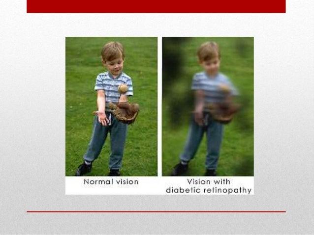 Diabetic retinopathy Slide 3
