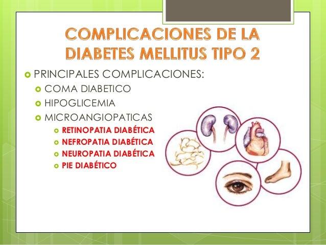 Diabetimss