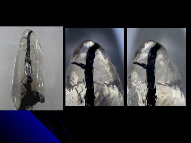 Diafanización anatomía radicular
