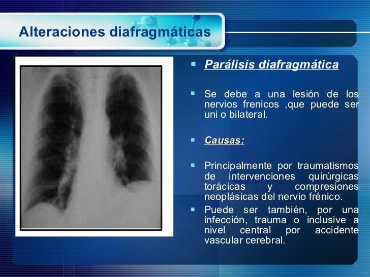 Alteraciones diafragmáticas <ul><li>Parálisis diafragmática </li></ul><ul><li>Se debe a una lesión de los nervios frenicos...