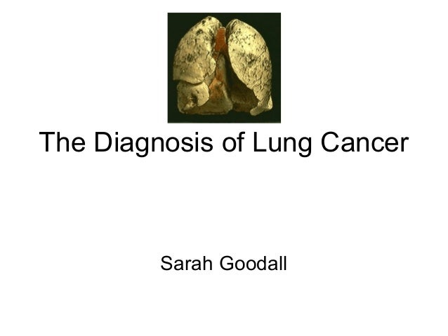 The Diagnosis of Lung Cancer Sarah Goodall