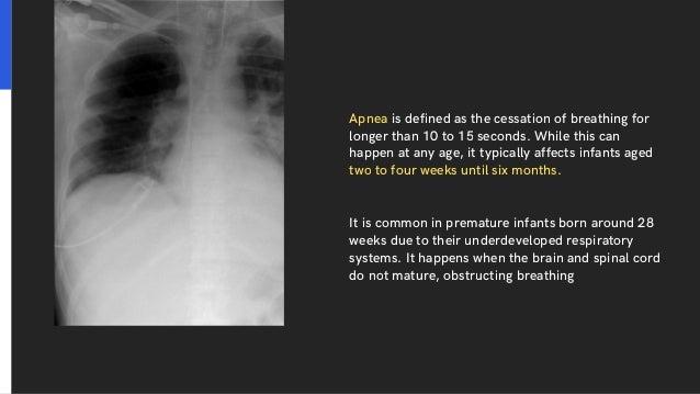 Neonatal Apnea Slide 2