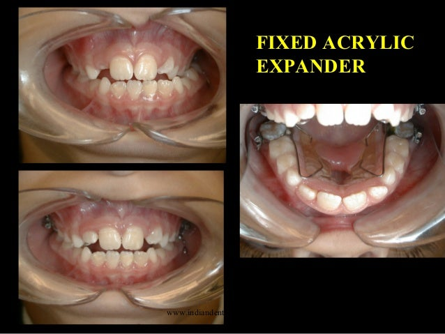 diagnosis define the problem certified fixed orthodontic courses by i