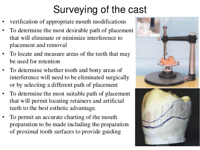 diagnosis and treatment planning for partially Treatment of the partially edentulous patient with worn dentition:  and phonation for a partially edentulous patient with a  diagnosis, and treatment planning.