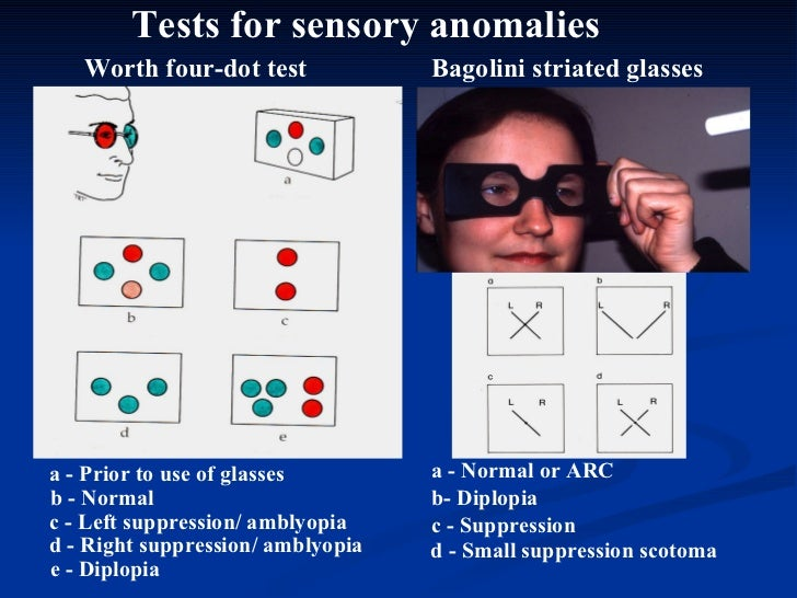 Tests for sensory anomalies Worth four-dot test a - Prior to use of glasses b - Normal  c - Left suppression/ amblyopia Ba...