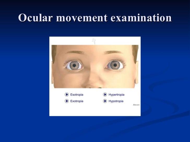 Ocular movement examination