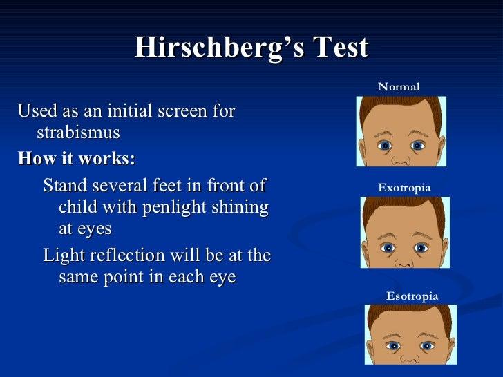 Hirschberg's Test <ul><li>Used as an initial screen for strabismus </li></ul><ul><li>How it works: </li></ul><ul><ul><li>S...