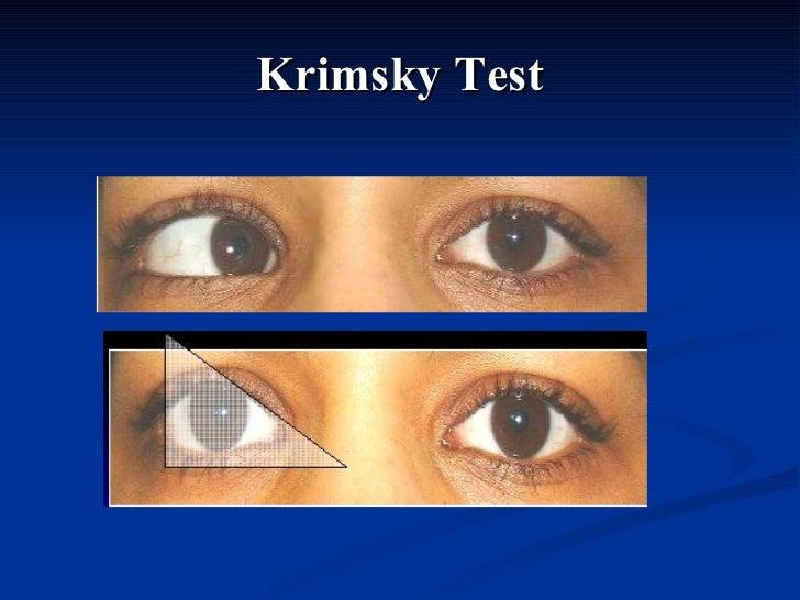 Krimsky Test