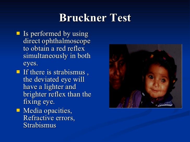 Bruckner Test <ul><li>Is performed by using direct ophthalmoscope to obtain a red reflex simultaneously in both eyes. </li...