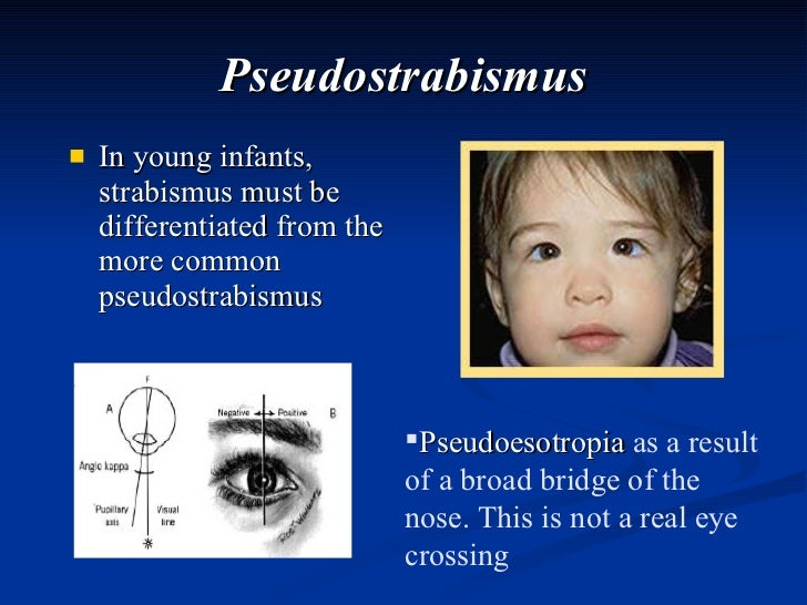 Pseudostrabismus <ul><li>In young infants, strabismus must be differentiated from the more common pseudostrabismus </li></...