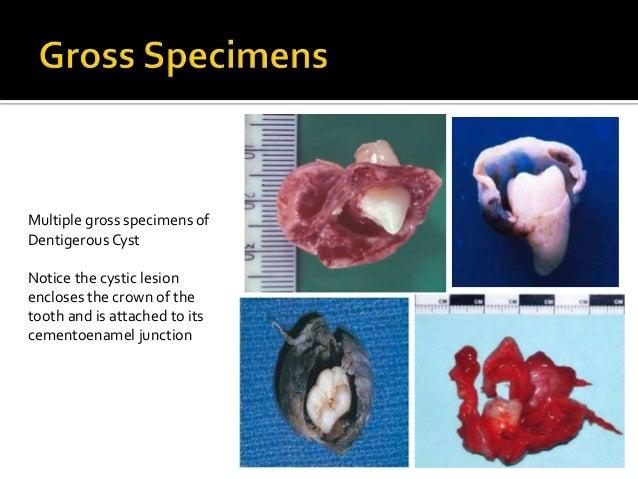 Adenomatoid Odontogenic Tumor Gross Diagnosis of cysts in ...