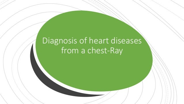 Diagnosis of heart diseases from a chest-Ray