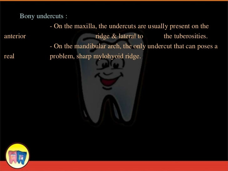 Bony undercuts :               - On the maxilla, the undercuts are usually present on theanterior                       ri...