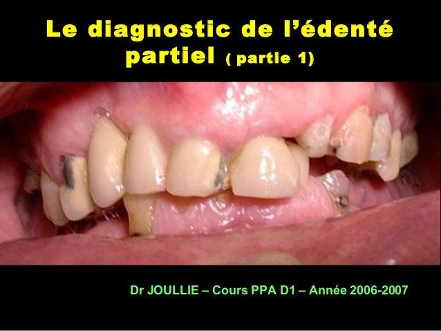 Le diagnostic de l'édenté partiel ( partie 1) Dr JOULLIE – Cours PPA D1 – Année 2006-2007