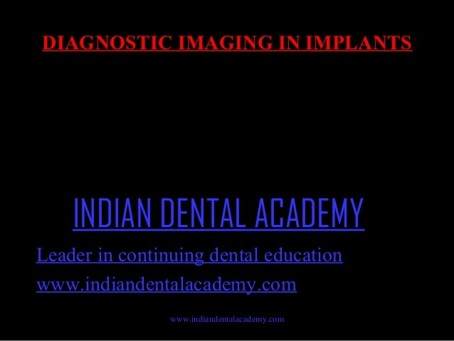 DIAGNOSTIC IMAGING IN IMPLANTS  INDIAN DENTAL ACADEMY Leader in continuing dental education www.indiandentalacademy.com ww...