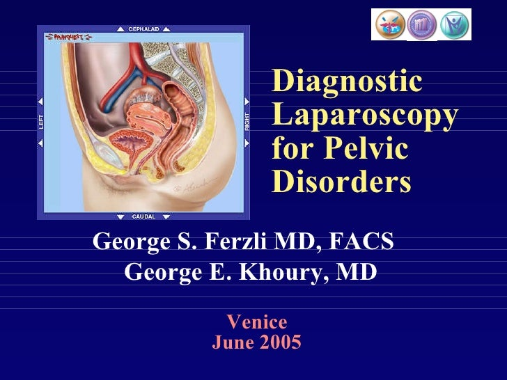Diagnostic Laparoscopy for Pelvic Disorders Venice June  2005 George S. Ferzli MD, FACS George E. Khoury, MD