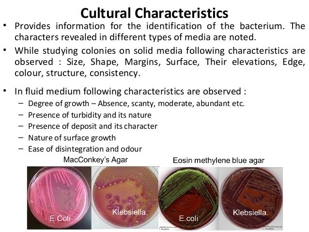 identifying two unknown species of bacteria essay Read this essay on microbiology unknown bacteria identifying the unknown bacterium was determined by separating the genus is capitalized but the species is.