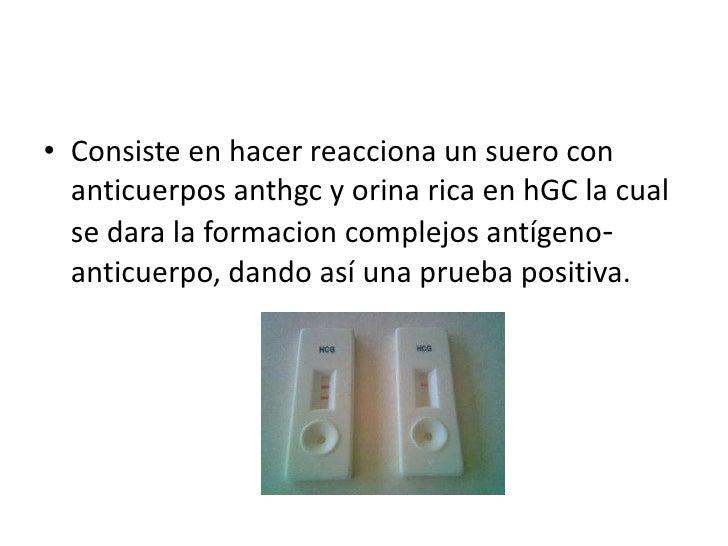 Consiste en hacer reacciona un suero con anticuerpos anthgc y orina rica en hGC la cual se dara la formacioncomplejos antí...