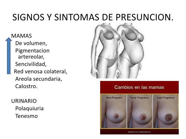 SIGNOS Y SINTOMAS DE PRESUNCION.<br />MAMAS<br />  De volumen, <br />Pigmentacionartereolar,<br />Sencivilidad,<br /> Red ...