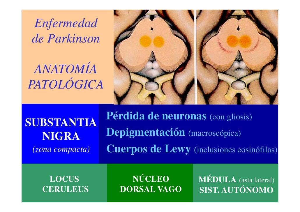 Dorable Anatomía Y Fisiología De La Enfermedad De Parkinson Patrón ...