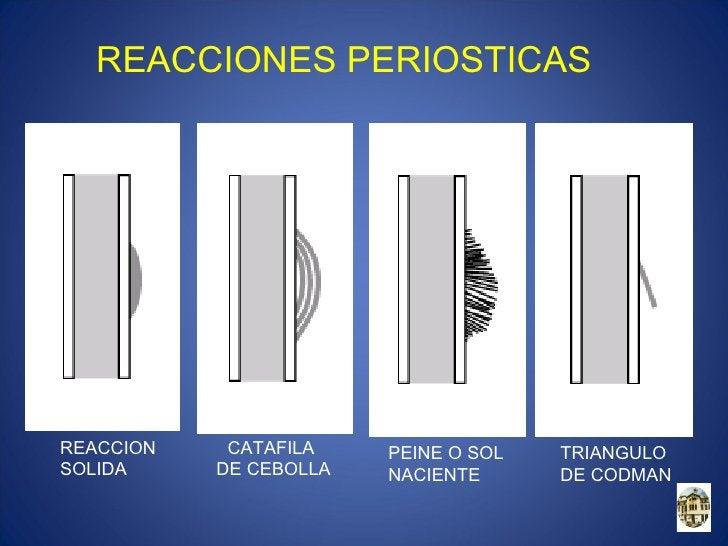 SISTEMA DE CLASIFICACION DE TUMORES OSEOS       AMERICAN JOINT COMISION 1988ESTADIO    GRADO       MEDIDA       GANGLIOS  ...