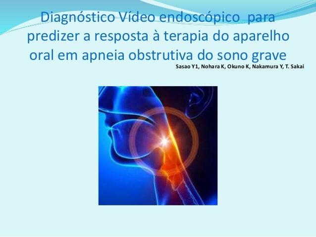 Diagnóstico Vídeo endoscópico para predizer a resposta à terapia do aparelho oral em apneia obstrutiva do sono grave Sasao...