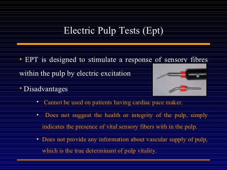how to explain electric pulp test to patient