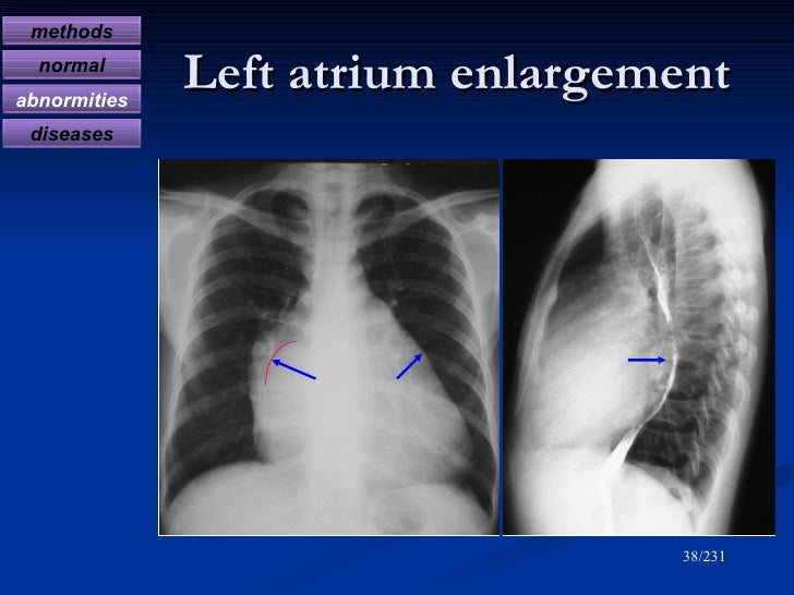 X ray made easy