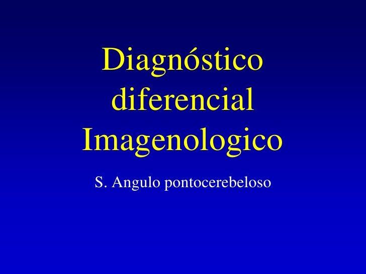Diagnóstico diferencial Imagenologico<br />S. Angulo pontocerebeloso<br />