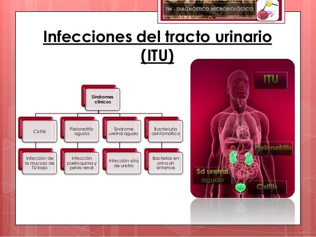 Infecciones del tracto urinario                     (ITU)                             Síndromes                           ...