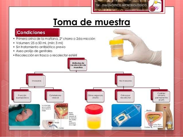 Toma de muestra  Condiciones• Primera orina de la mañana, 2º chorro o 2da micción• Volumen: 25 a 50 ml. (mín: 3 ml)• Sin t...