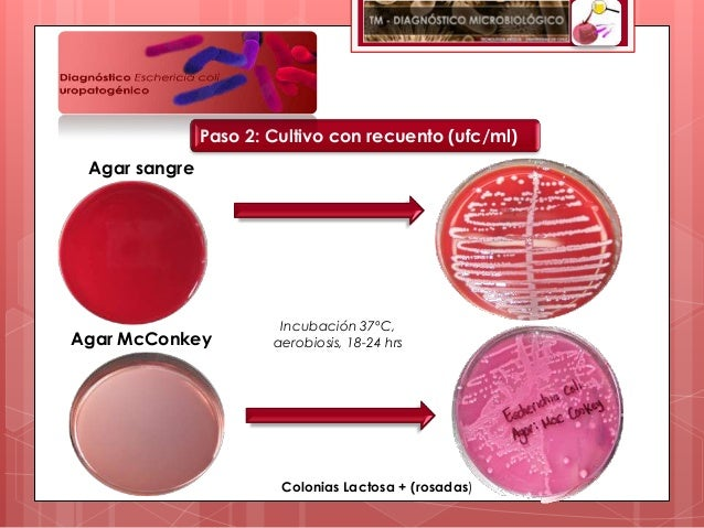 Paso 2: Cultivo con recuento (ufc/ml) Agar sangre                        Incubación 37ºC,Agar McConkey          aerobiosis...