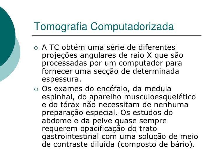 Tomografia Computadorizada    A TC obtém uma série de diferentes     projeções angulares de raio X que são     processada...