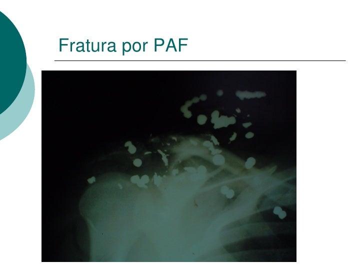 RM Encéfalo - Coronal
