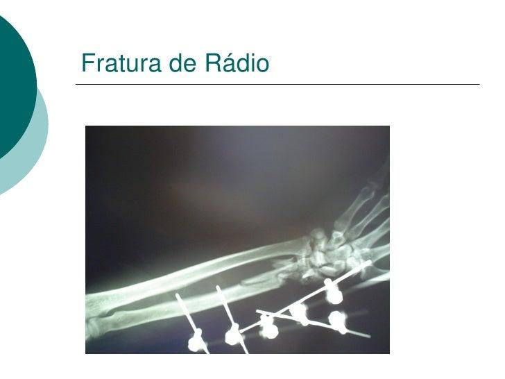 RNM Coronal Perna e Pé
