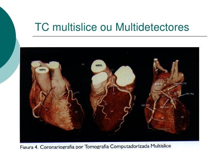 TC multislice ou Multidetectores