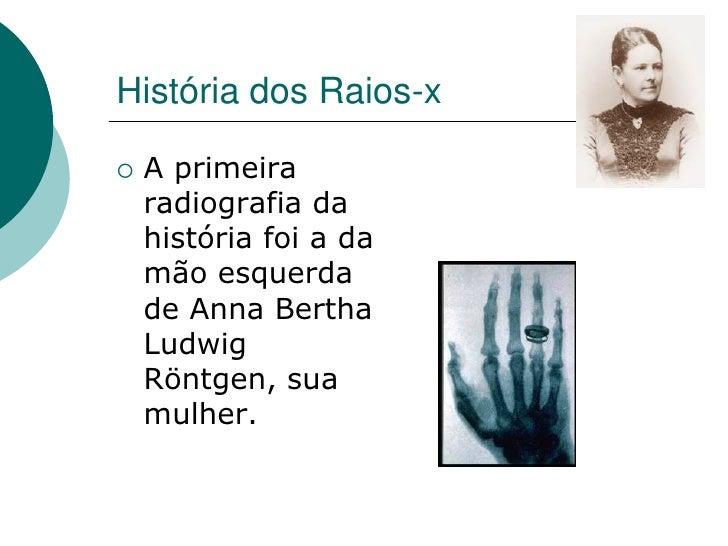 História dos Raios-x     A primeira     radiografia da     história foi a da     mão esquerda     de Anna Bertha     Ludw...