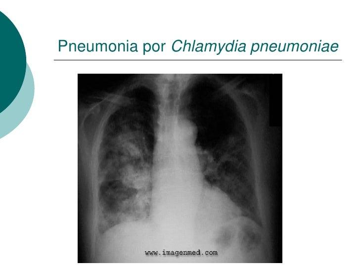 Pneumonia por Chlamydia pneumoniae