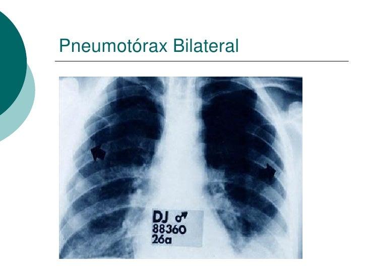 Pneumotórax Bilateral