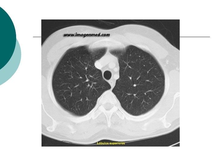 Aneurisma Biloculado da Aorta