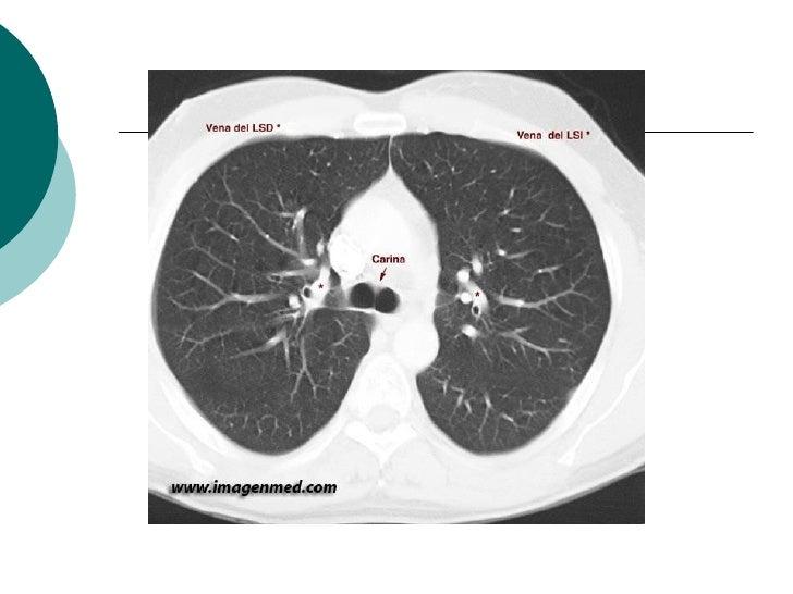 Radiografia Perfil de Crânio