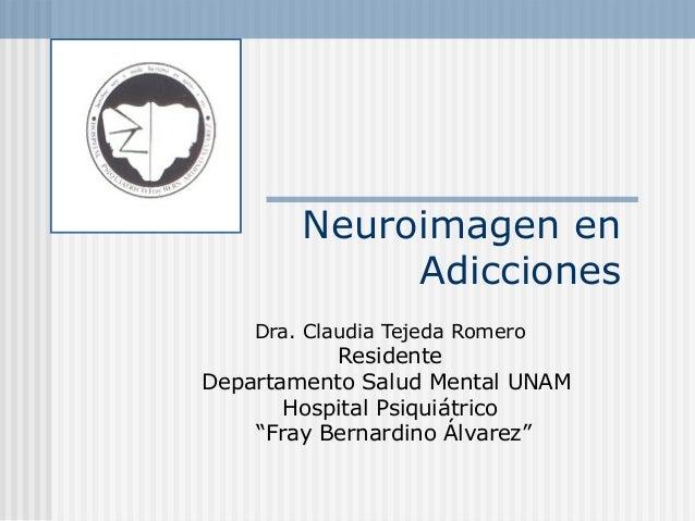 """Neuroimagen en Adicciones Dra. Claudia Tejeda Romero Residente Departamento Salud Mental UNAM Hospital Psiquiátrico """"Fray ..."""