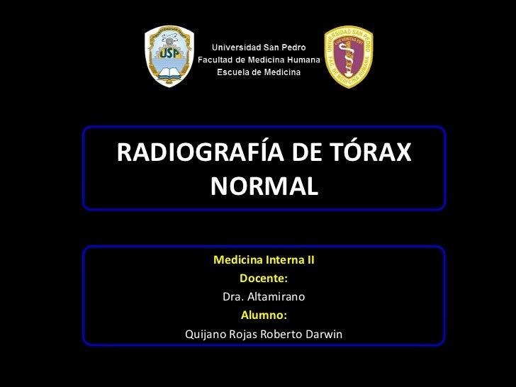 RADIOGRAFÍA DE TÓRAX      NORMAL         Medicina Interna II              Docente:          Dra. Altamirano              A...