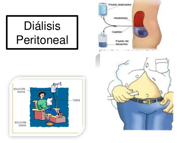 Dialysis peritoneal procedimiento pdf download